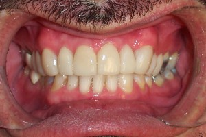 Veneers #4-#13 at cementation appointment