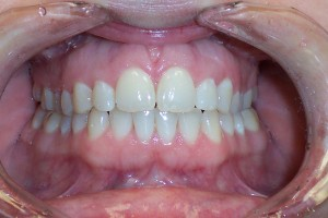 Invisalign after space closure